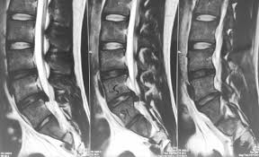 Causes, symptoms and treatment of herniated disc